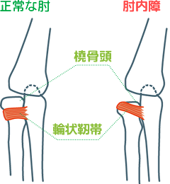 正常な肘と肘内障